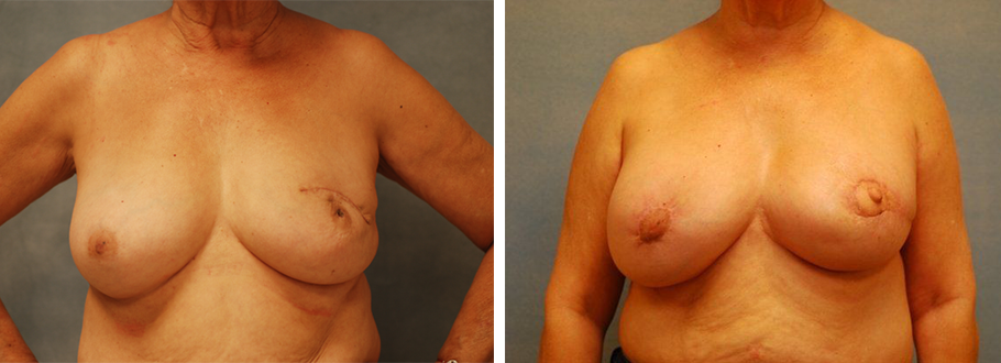 Breast Reconstruction #2