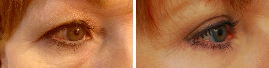 Eyelid Surgery & Brow Lift #1