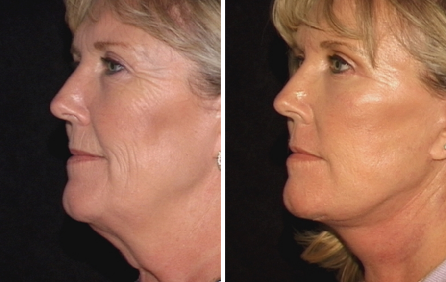 Face & Neck Lift #7