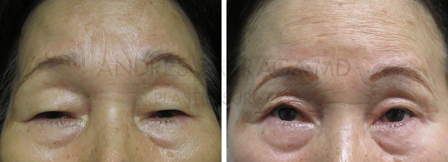 Blepharoplasty with Ptosis Repair